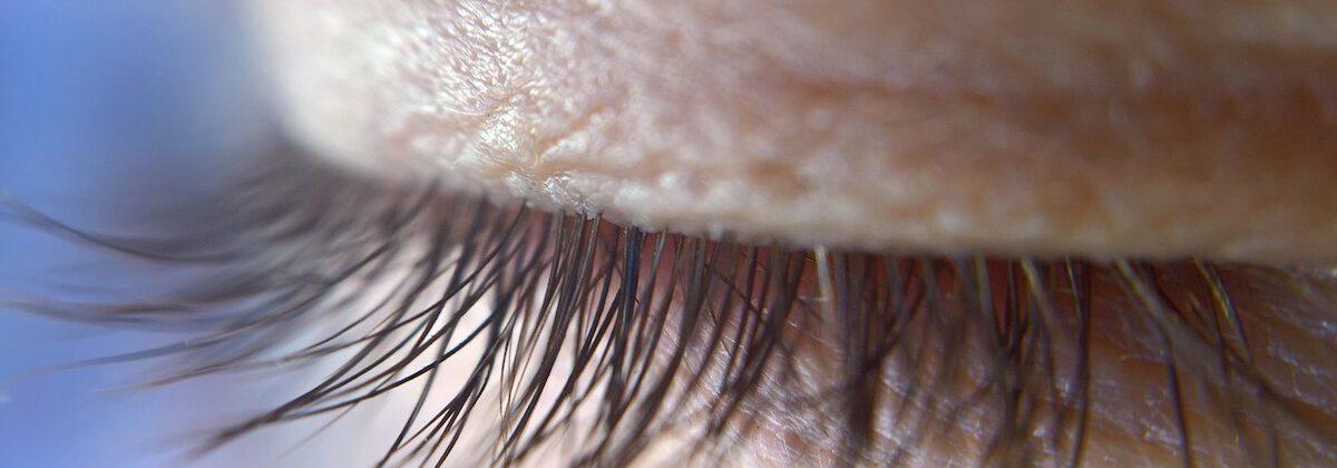 bovenooglidcorrectie verhelpt hangende oogleden